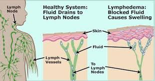 Cleaning the Biggest Drain in your Body – the Lymphatic System